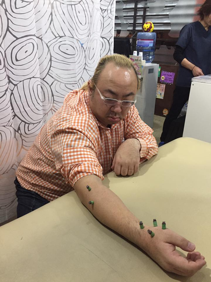 津軽三味線界の重鎮・上村先生、初の灸治療♪