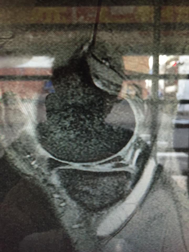 膝の半月版損傷 画像